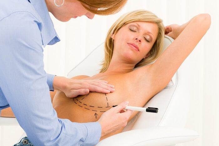 mellplasztika plasztikai sebésszel