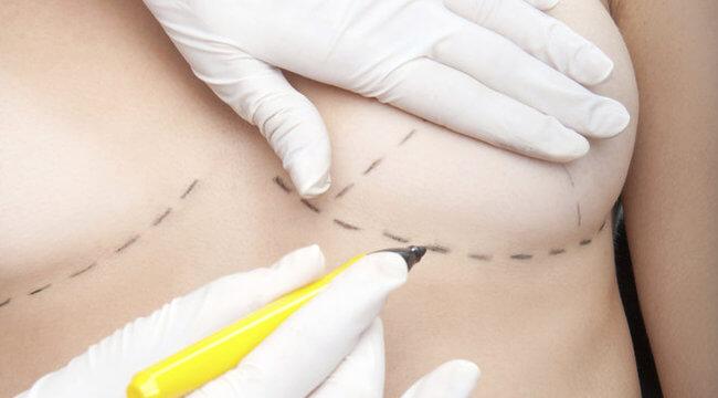 A legjobb mellplasztikai sebészek Budapesten praktizálnak